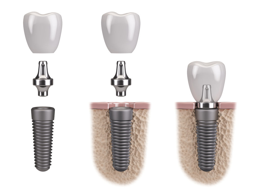 dental implant brookline ma