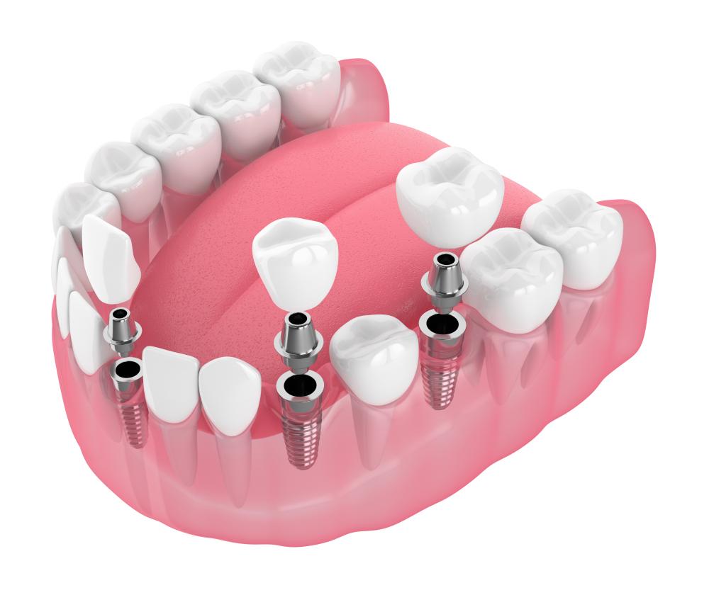 dental implant brookline ma
